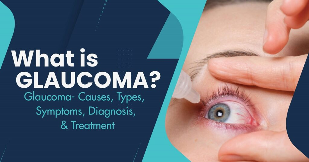 Glaucoma- Causes, Types, Symptoms, Diagnosis, and Treatment