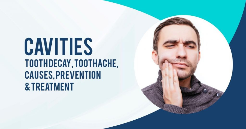 Cavities: Tooth Decay, Toothache, Causes, Prevention & Treatment