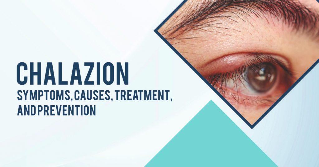 Chalazion: Symptoms, Causes, Treatment, and Prevention